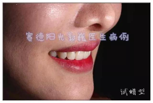 赛德阳光口腔 郭巍医生 牙齿美白科普案例前后对比图