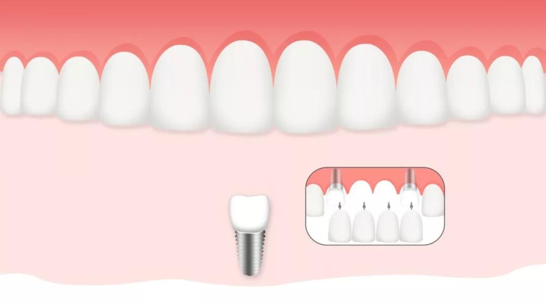 种植修复的成功率与多方面因素有关,包括:患者的全身与局部条件、严格规范的手术操作、种植系统的选择、修复的设计与修复体的制作、维护等。  过去30年来,现代口腔种植学迅速发展并完善。种植的5年成功率已经大大提高。国内近年的报道显示,规范的口腔种植治疗可以达到10年95%以上的成功率或存留率。目前世界上第一例病人的口腔种植体已经用了43年,依然完好。