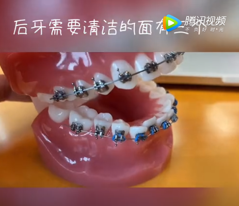 传统固定牙套的清洁
