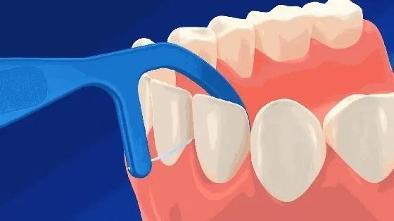 牙缝儿就要学会正确使用牙线了